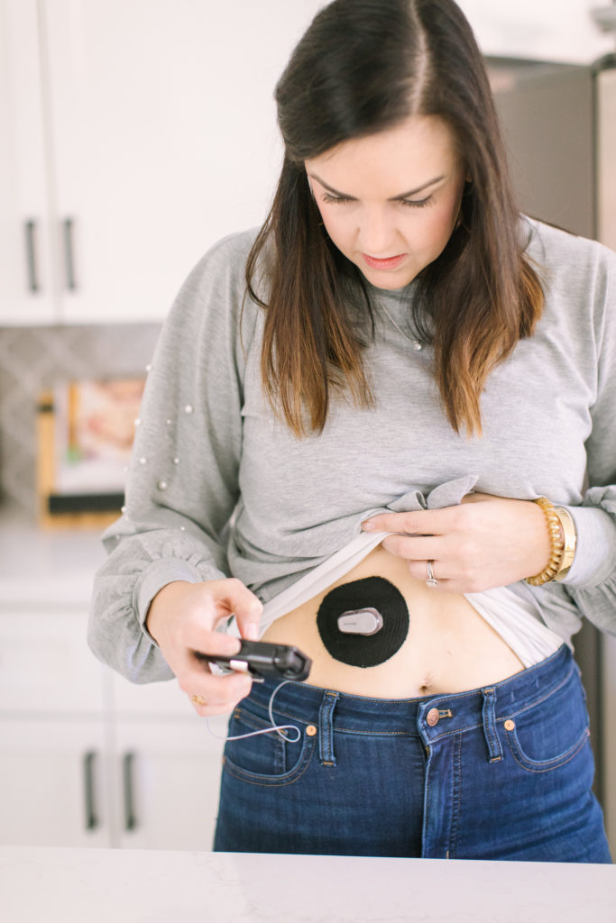woman with diabetes using tandem insulin pump different types of diabetes